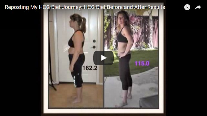 video template on HCG experience