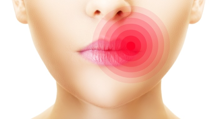 woman with herpes